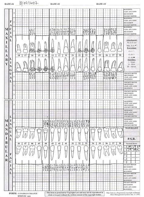 Live Comprehensive Dental Hygiene Case Study Dr Boban Fidanoski Rdt Rdh Dmd Comprehensive Dental Template
