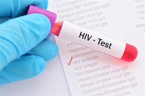 clients urged to get hiv screening after health authority different types of hiv tests al borg medical