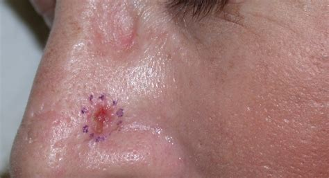 in bcc basal cell carcinoma bcc acd