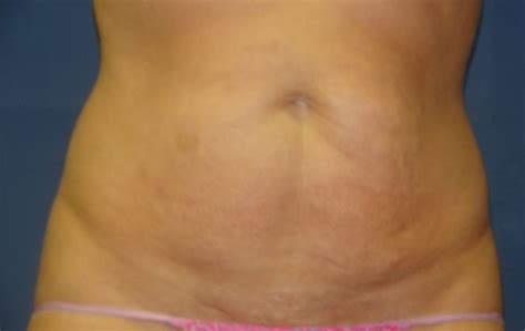 case 3 tummy tuck before and after gallery