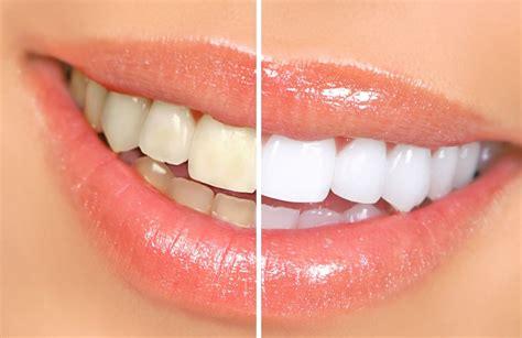 como blanquear dientes en casa c 243 mo blanquear los dientes en casa 161 remedios caseros