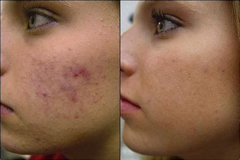 scar removal the truth about acne scar treatment 171 island dermatology