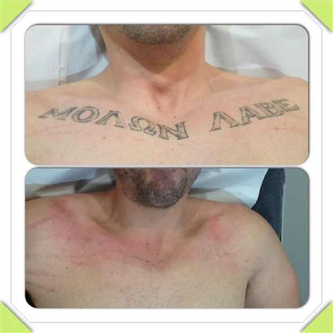 tattoo removal specialist removal photo gallery