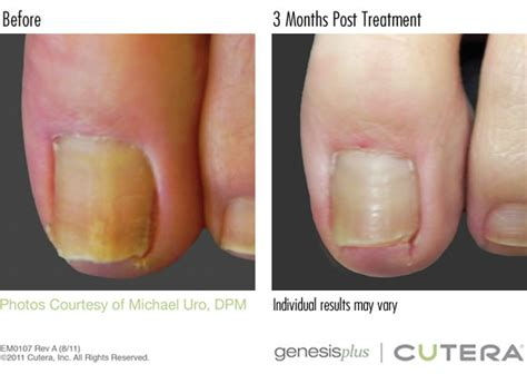 genesis remedies toenail fungus treatment
