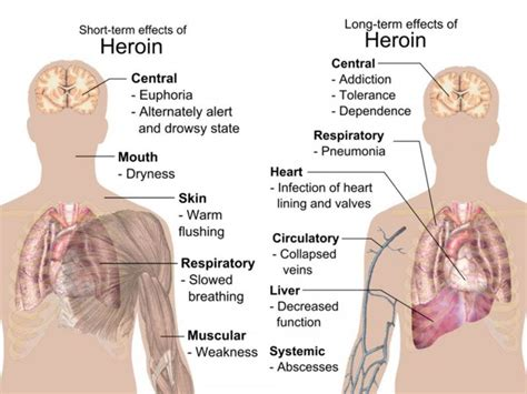 Can A Person Detox From Heroin At Home by Heroin Addiction Physical Indicators And How To Get Help