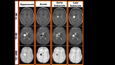stay a brain bleed a in the balance a story books mri findings of different stages of haemorrhage