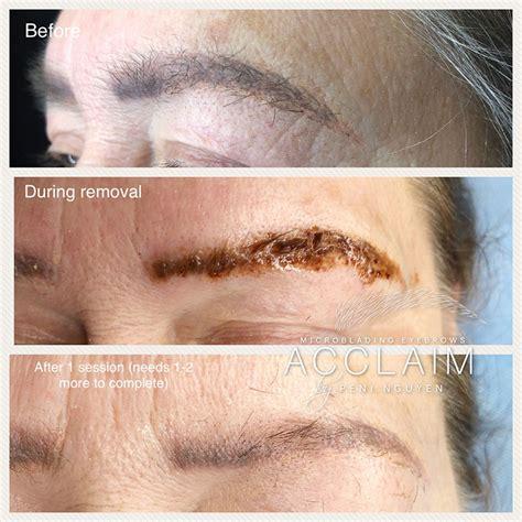 tattoo removal arlington tx eyebrow removal arlington microblading removal tx