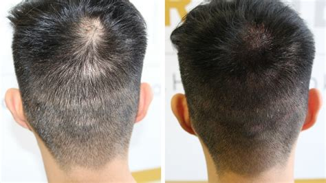scalp micropigmentation to make hair ticker pictures adding density hairline ink