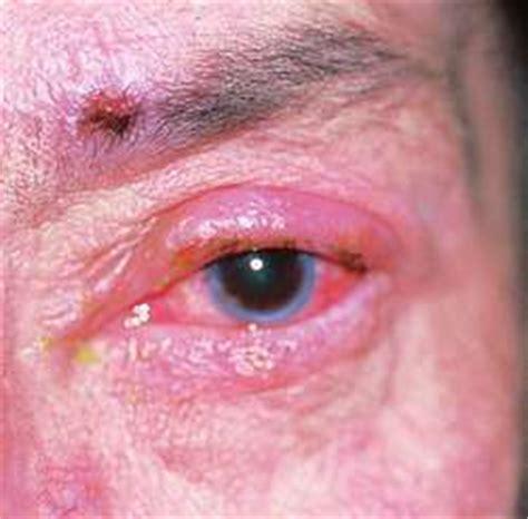 blepharitis images marginal blepharitis gallery