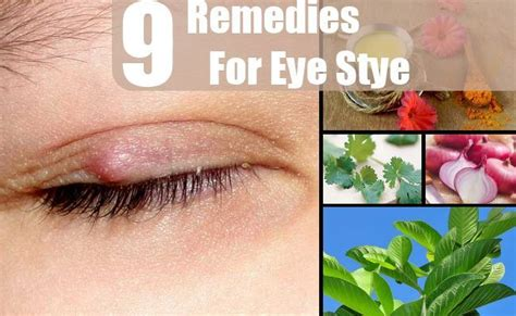 9 home remedies for eye stye treatments cure
