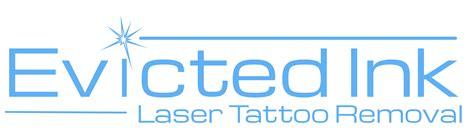 tattoo removal in kansas wichita kansas laser removal astanza
