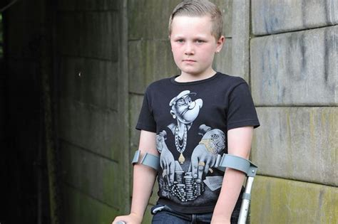 Aiden Butterworth From Macclesfield Almost Lost His Leg Leg By Aiiden