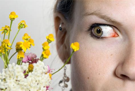 eye allergies eye allergies eye allergies question and answers firmoo answers