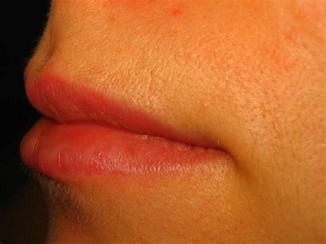 Laser Hair Removal Shedding Process a picture of my lip area hair after shedding two