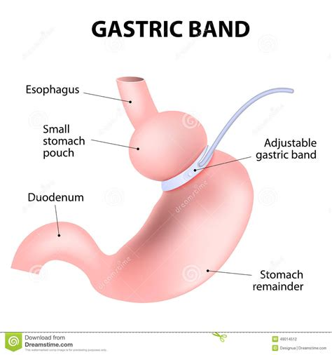 gastric bypass diagram diagram of an adjustable gastric band stock vector image
