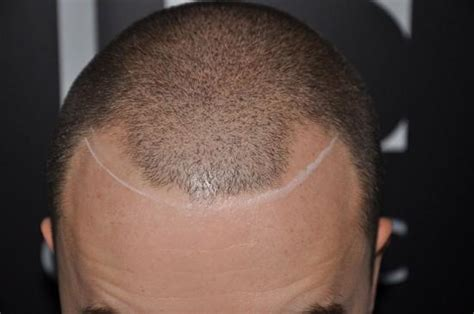 hair tattoos for balding men are getting hair tattoos to cover baldness joseph
