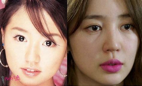 korean actress that did plastic surgery what is the juice behind korean star yoon eun hye plastic