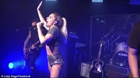 Live Wardrobe by U S Singer Gaga Flashes As She Suffers