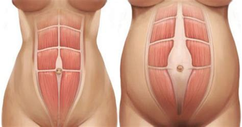 diastasis recti c section diastasis recti