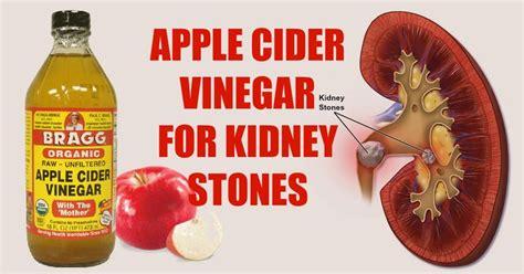 Clinical Test On Caroline S Apple Cider Vinegar Detox Drink Recipe by 25 Best Ideas About Kidney Stones Symptoms On