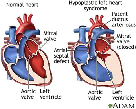 swinging heart syndrome hypoplastic left heart syndrome