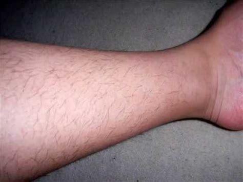 losing leg hair on men image gallery leg hair loss