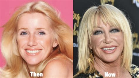 suzanne somers celebrity plastic surgery 24 suzanne somers plastic surgery before and after photos
