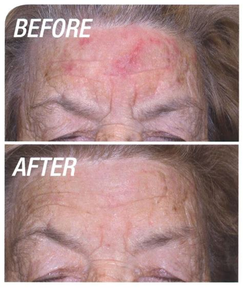 blu u light treatment for actinic keratosis photodynamic skin cancer therapy west vancouver bc