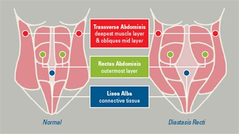 pulling sensation after c section causes and treatments of diastasis recti among men new