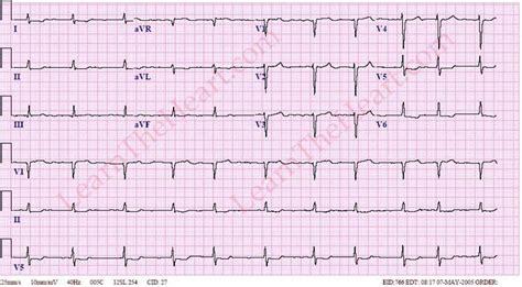 atrial fibrillation 2 learntheheart