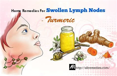 best 20 swollen lymph nodes ideas on lymph