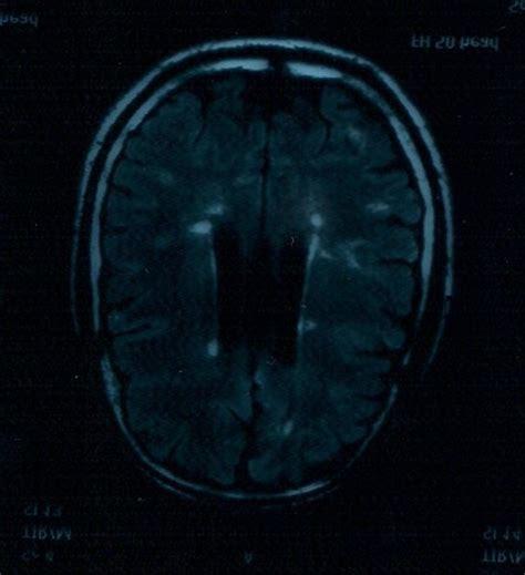nicoletta mantovani sla una speranza contro la sclerosi multipla nicoletta