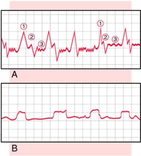 vascular pattern meaning doppler ultrasonography definition of doppler