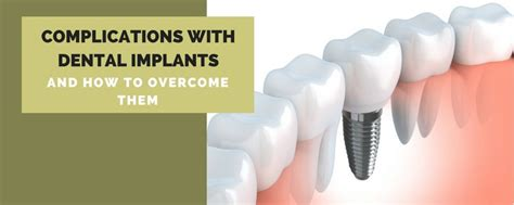 complications  dental implants    overcome