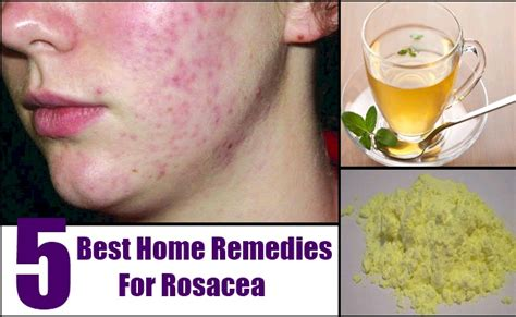 5 best home remedies for rosacea treatments