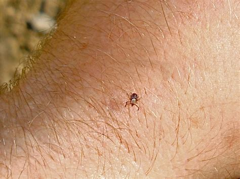 get tick staying safe in tick territory havasi wilderness foundation