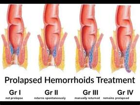 Cushion For Hemorrhoids How To Treat Prolapsed Internal Hemorrhoids Stop