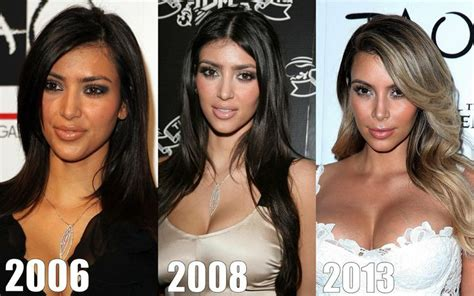 kim kardashian plastic surgery before after pictures 2015 kim kardashian before after plastic celebrity