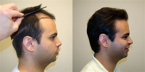 boys hair crown young man s hairline and crown restoration dr brett