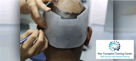 hair transplant training china forhair hair restoration training fue course practice training