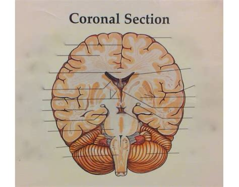 coronal section of skull p5 coronal brain section