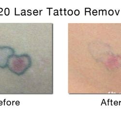 tattoo removal manhattan disappearing ink laser removal removal