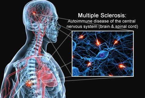 Stool Transplant Sclerosis by What Is Sclerosis Ms Symptoms Causes