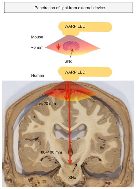 light therapy for parkinson s text the potential of light therapy in parkinson s