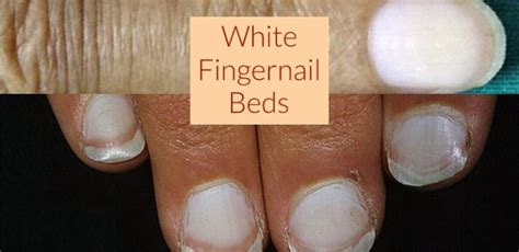 White Nail Beds by White Fingernail Beds What It Means Get Nails