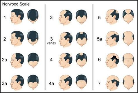 bandage hair shaped pattern baldness 17 best images about hair loss facts myths on pinterest