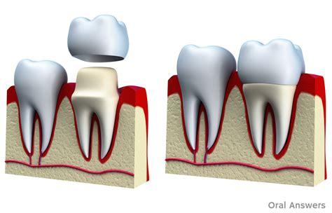 What Is Root Bridge by Dental Crown Procedure What Is A Dental Crown Cap