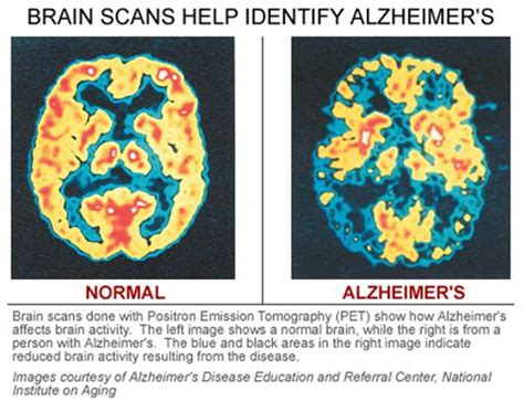 alzheimer s alzheimer s disease is killing my racing alzheimer s