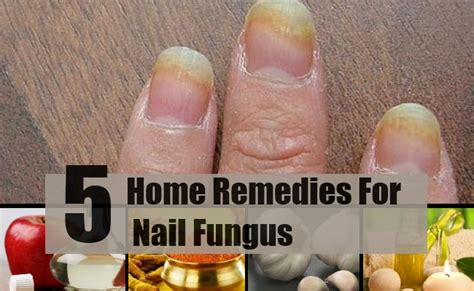 Nail Fungus Home Remedy by 5 Home Remedies For Nail Fungus Treatments