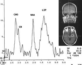Proton Mr Spectroscopy Proton Mr Spectroscopy In Patients With Acute Temporal